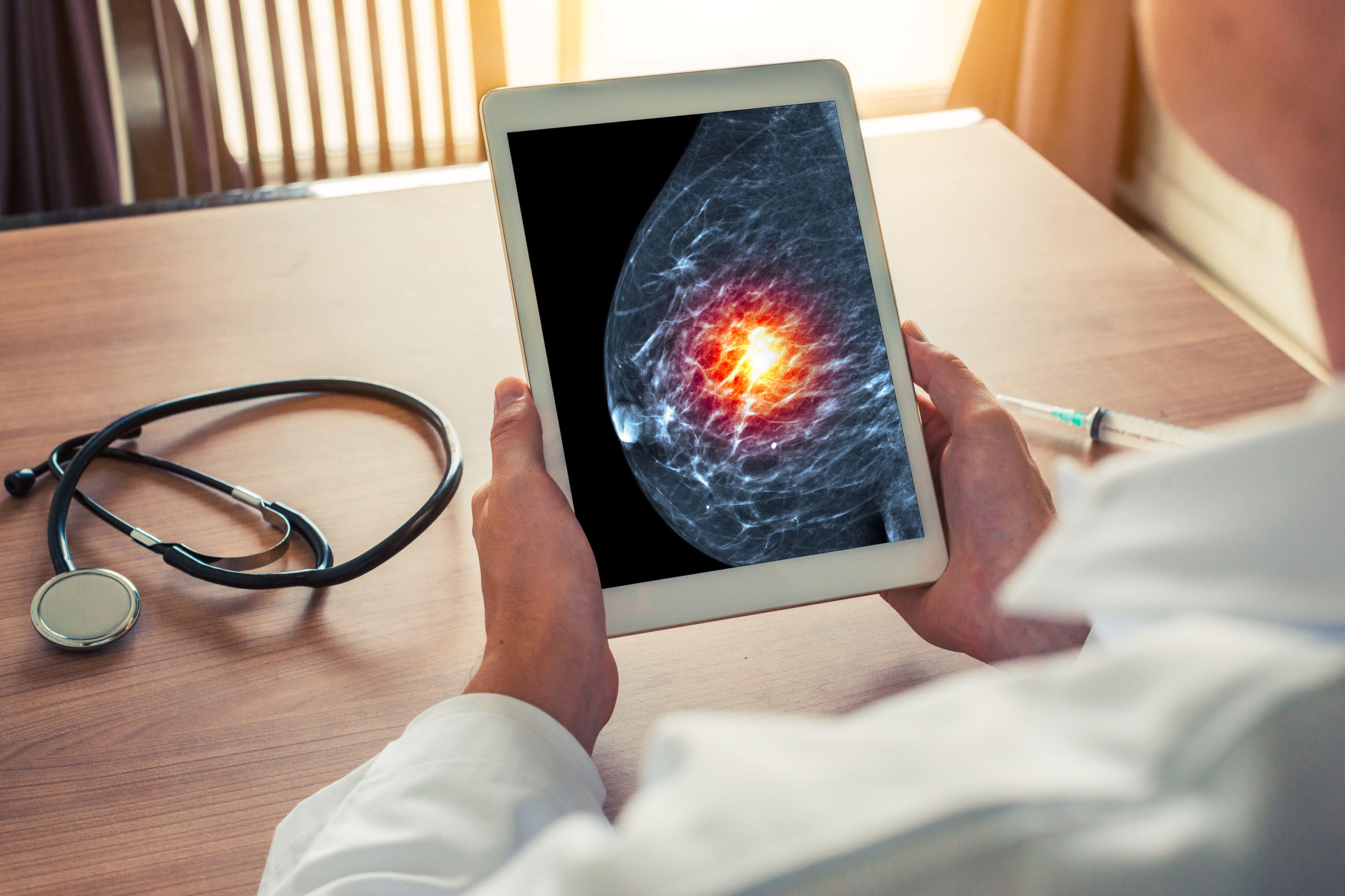 乳がん・マンモグラフィー