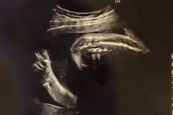 妊娠7ヶ月目のエコー写真 赤ちゃんの「ポーズ」に感動の声相次ぐ