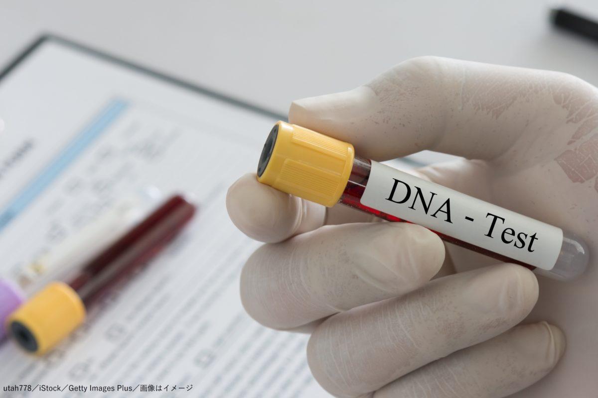 DNA・検査